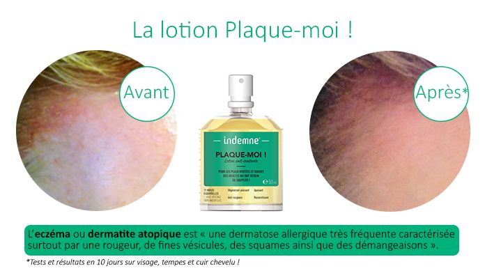 comment traiter psoriasis cuir chevelu