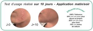 *Tests cliniques réalisés sous contrôle dermatologique  sur un panel de 21 personnes sur 8 semaines