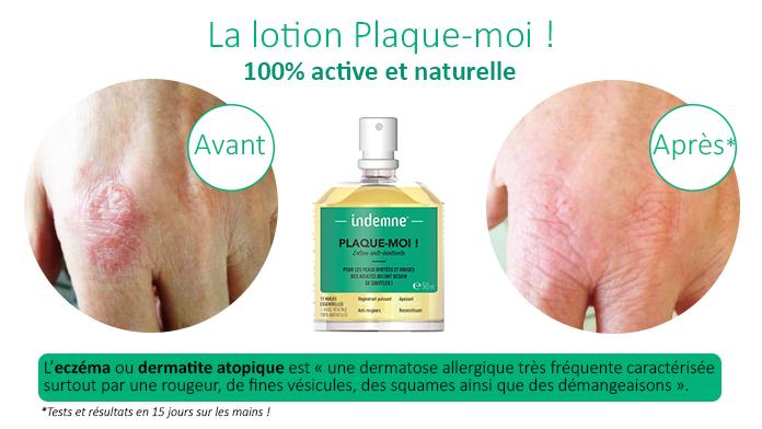 Lotion anti-irritations de la peau résultat avant après